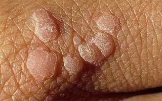 Что такое ВПЧ в гинекологии: симптомы, лечение, фото