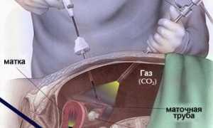 Можно ли забеременеть после лапароскопии