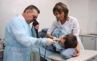 Поверхностный или катаральный гастрит: воспаление желудка и его лечение