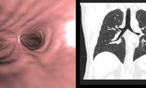 Бронхоскопия легких при раке