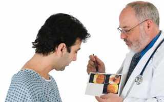 Процедура колоноскопии кишечника