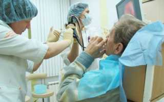 Бронхоскопия легких: что важно знать о процедуре?