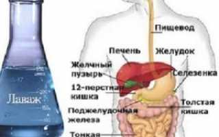 Лаваж кишечника: отзывы, цена, купить