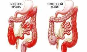 Симптомы, причины, диагностика и лечение Болезни Крона