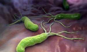 Эрозивный гастрит – распространенное заболевание ЖКТ