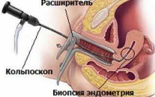Гистероскопия диагностическая
