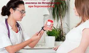 Анализ мочи по Нечипоренко что показывает: расшифровка, норма у взрослых и детей